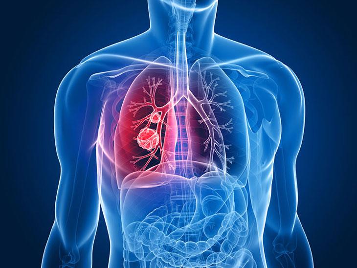 Ung thư đại tràng di căn đến phổi