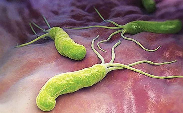 Vi khuẩn HP là một trong những nguyên nhân chính gây bệnh