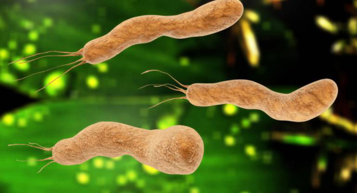 Vi khuẩn HP nguyên nhân chính gây ra bệnh viêm loét dạ dày