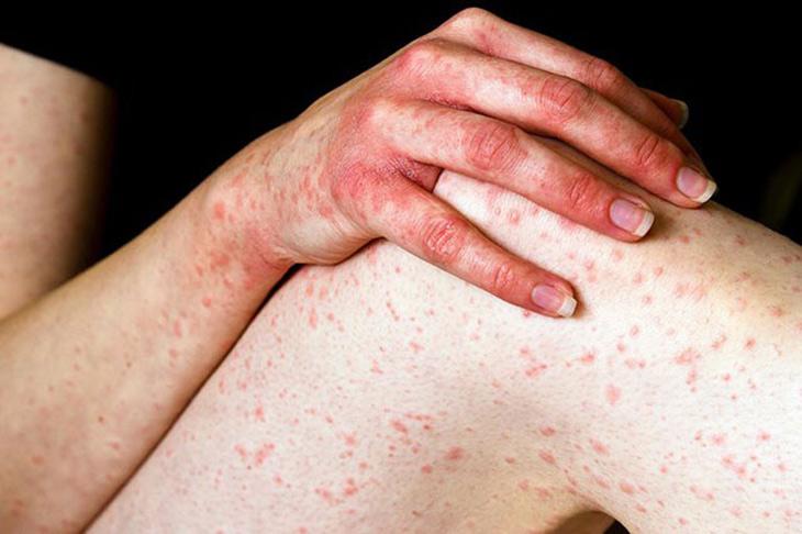 Viêm da cơ địa hình ảnh thường thấy nhất là các mẩn đỏ gây ngứa dữ dội