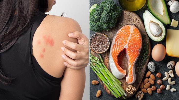 Chế độ dinh dưỡng góp phần cải thiện sức khỏe làn da