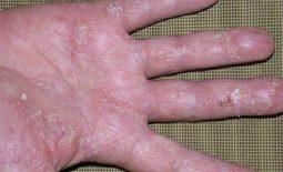 Viêm da cơ địa mất vân tay do đâu? Làm sao để chữa trị phục hồi