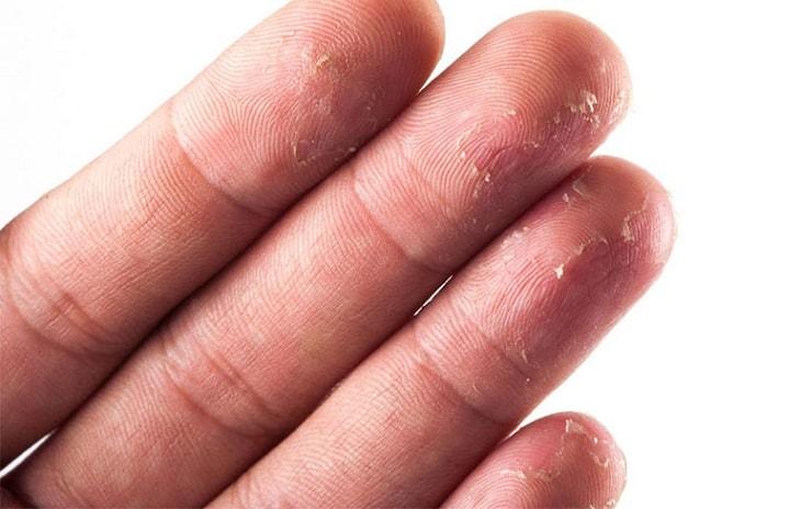 Các lớp da dày lên rồi bong ra nhiều lần khiến vân tay bị mất