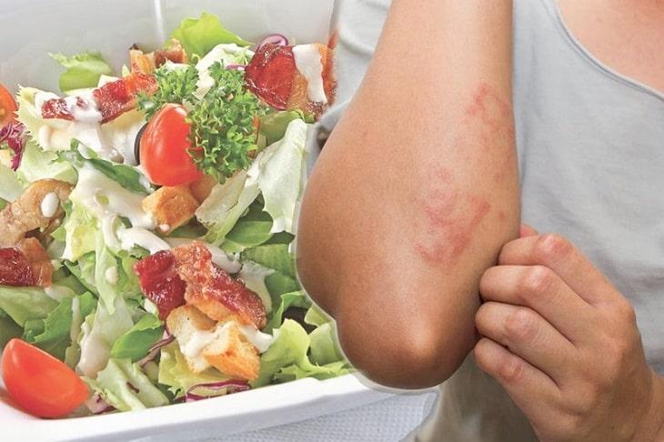 Viêm da cơ địa ở người lớn nên ăn gì, kiêng gì tốt?