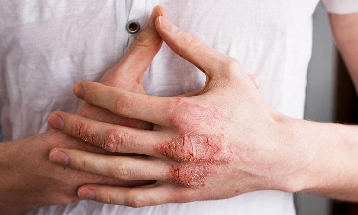 Không nên gãi ngứa khiến da bị tổn thương