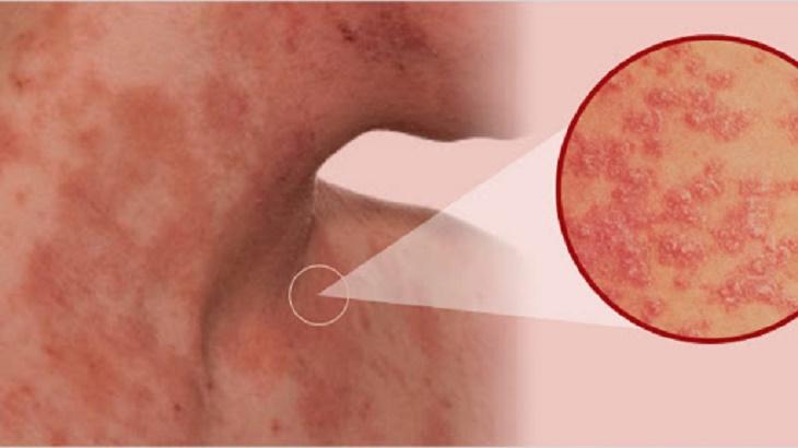 Viêm da cơ địa tái đi tái lại có thể do việc điều trị sai cách