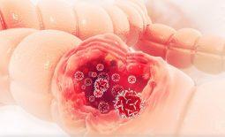 Viêm đại tràng thiếu máu cục bộ - Nguyên nhân, cách điều trị hiệu quả nhất