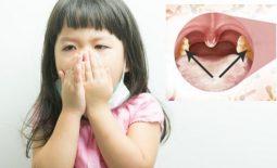 Viêm họng bạch hầu
