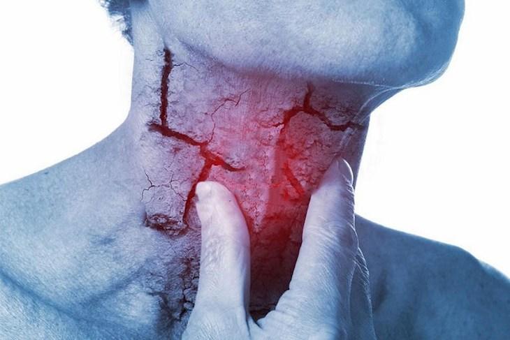 Viêm họng mãn tính có thể chữa khỏi nếu điều trị bệnh kịp thời