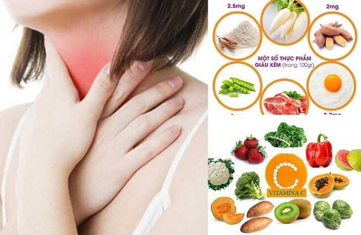 Chế độ ăn ảnh hưởng rất lớn đến tình trạng bệnh