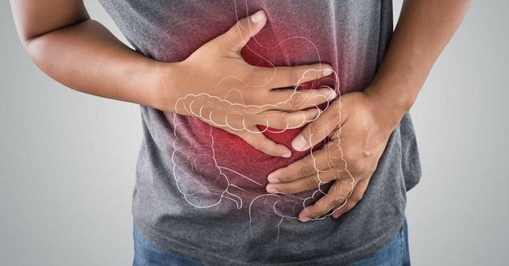 Viêm loét đại trực tràng chảy máu là bệnh có nhiều biến chứng nguy hiểm