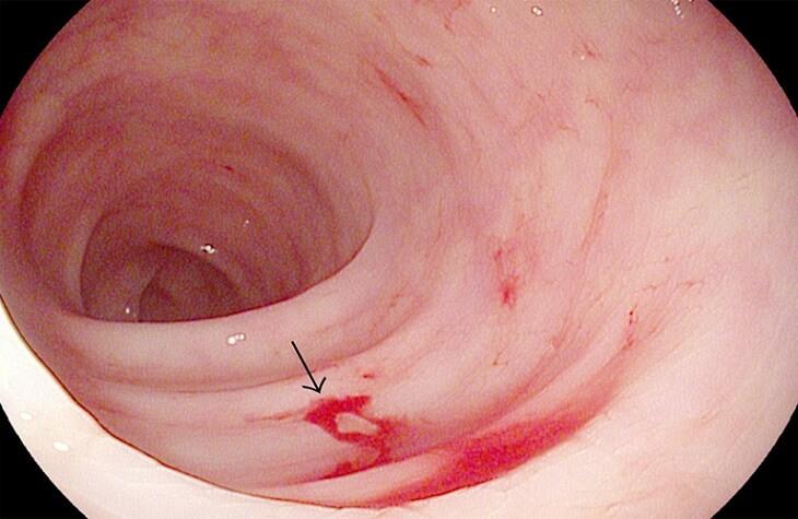 Hình minh họa viêm loét đại trực tràng chảy máu