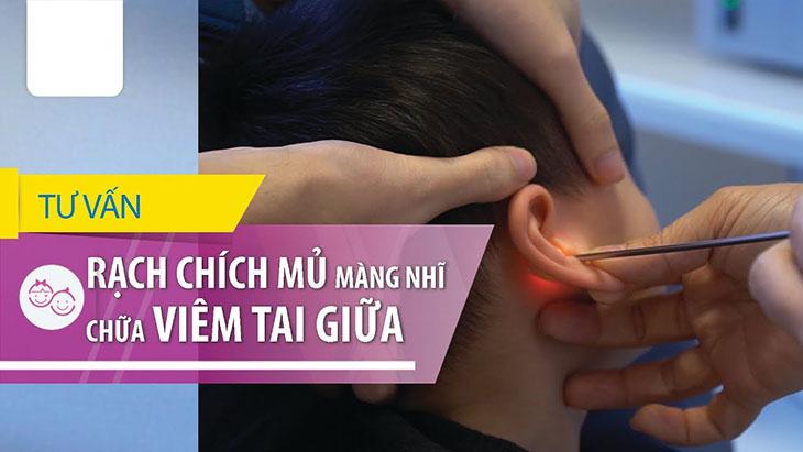 Viêm tai giữa có nên chích mủ không? - Nên lắng nghe những tư vấn từ bác sĩ chuyên khoa