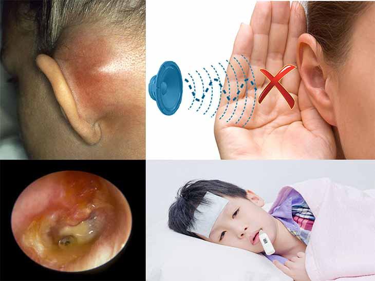 Viêm tai giữa gây ù tai có thể gặp ở bất kì ai, bất kì độ tuổi nào