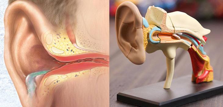 Hình ảnh về bệnh viêm tai giữa mạn tính có cholesteatoma