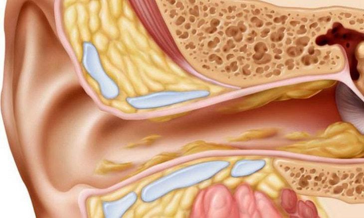 Viêm tai giữa cấp ở người lớn là bệnh gì?