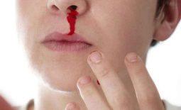 Chảy máu khi bị viêm loét dạ dày