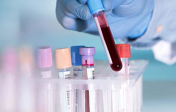 Xét nghiệm vi khuẩn HP bằng phương pháp có xâm lấn