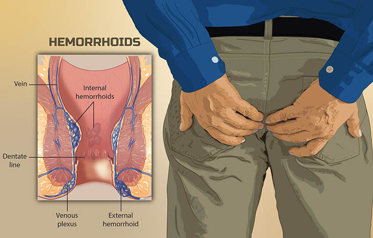 Bệnh lòi dom do tĩnh mạch hậu môn bị chèn ép gây phình đại và lòi ra ngoài khiến người bệnh đau rát, khó chịu đôi khi bị xuất huyết