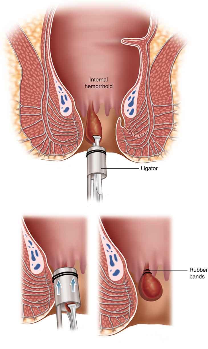 Phương pháp phẫu thuật có hiệu quả cao nhưng vẫn có khả năng tái phát