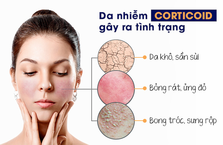 Da nhiễm Corticoid gây ra tình trạng khô rát, sần sùi, kích ứng hay giãn mao mạch