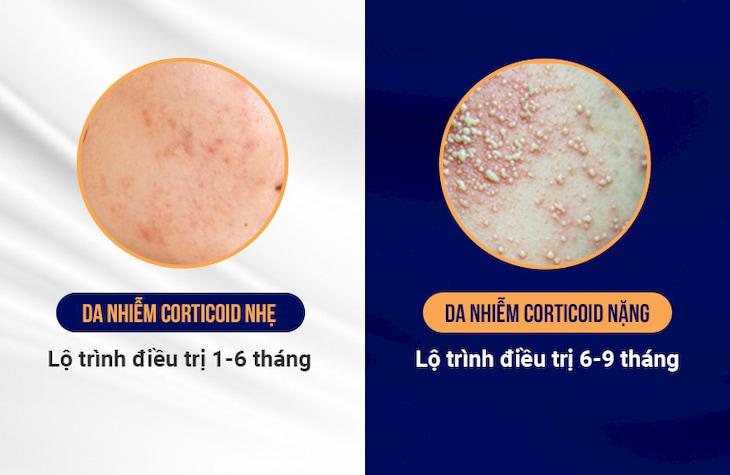 Lộ trình phục hồi da nhiễm Corticoid rõ ràng, phù hợp với mọi tình trạng da