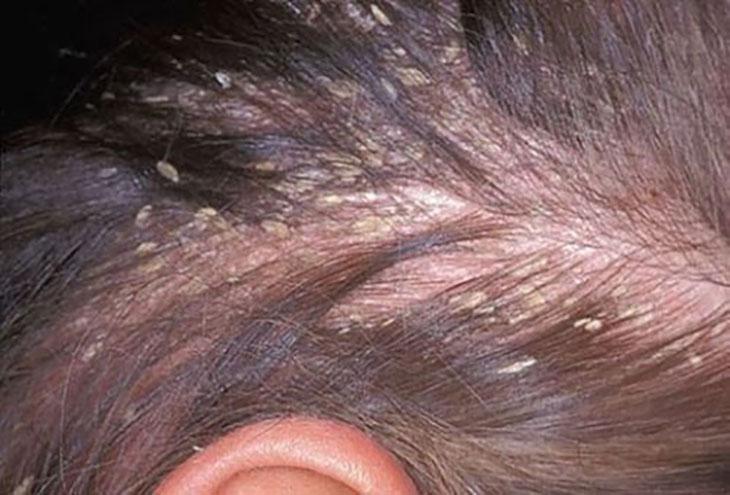 Á sừng da đầu dễ gây ra rụng tóc, do tổn thương khiến nang tóc bị ảnh hưởng