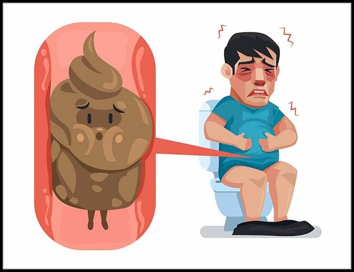 Bệnh trĩ là gì, gây khó chịu thế nào mà người bệnh lại thường hay âm thầm chịu đựng?
