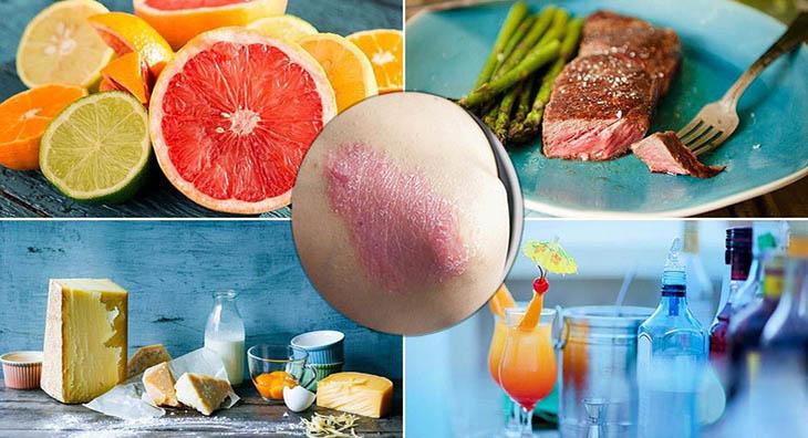 Bệnh vảy nên kiêng ăn gì? Nên ăn gì? Chế độ ăn uống ảnh hưởng thế nào đến bệnh?
