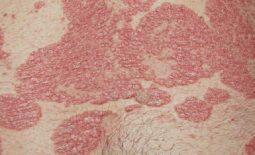 Triệu chứng điển hình của vảy nến vùng kín là xuất hiện mảng sần đỏ, ngứa ngáy