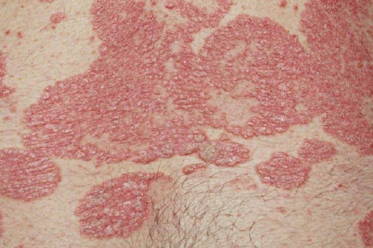 Triệu chứng điển hình của vảy nến là xuất hiện mảng sần đỏ, ngứa ngáy