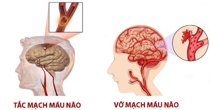 Rối loạn tiền đình tăng nguy cơ tai biến mạch máu não