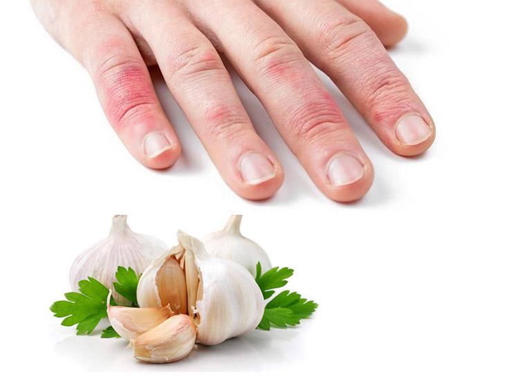 Tỏi có tính kháng khuẩn cao, dùng tỏi để đắp ngoài da giúp vết thương nhanh lành, giảm ngứa ngáy