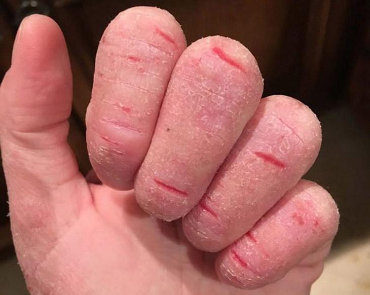 Hạn chế việc tiếp xúc trực tiếp với chất tẩy rửa. Đeo găng tay và đồ bảo hộ khi sử dụng hóa chất
