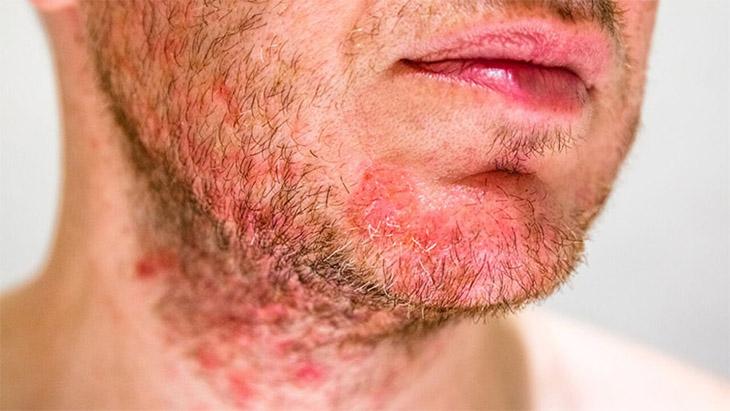 Viêm da cơ địa ở mặt khó có thể điều trị do bệnh liên quan đến cơ địa dị ứng