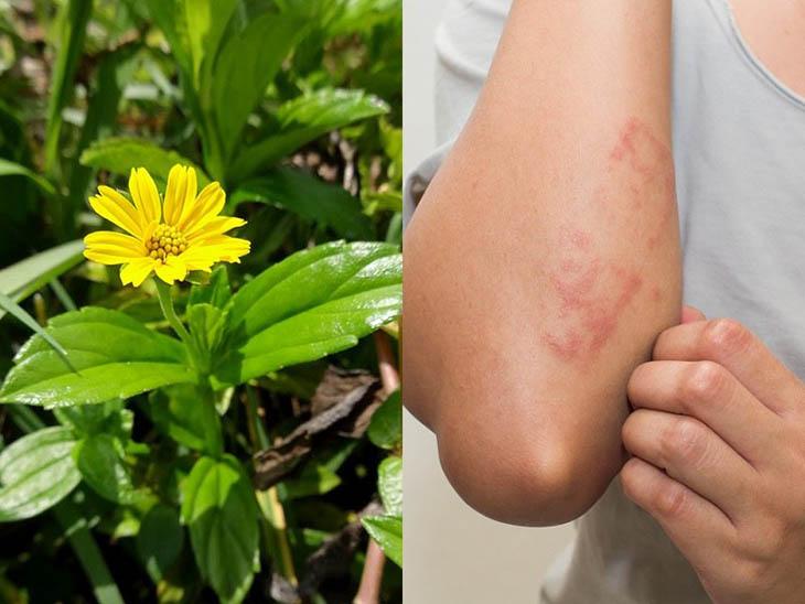 Chữa bệnh da liễu với cây sài đất giúp giảm nhanh các triệu chứng mụn nhọt, sưng tấy hay ngứa đỏ trên da…