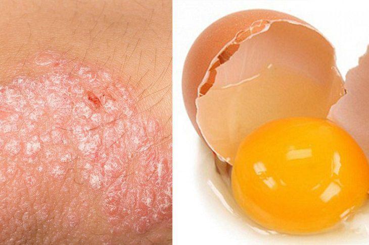 Cách chữa vẩy nến bằng lòng đỏ trứng gà có hiệu quả như lời đồn?