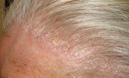Da đầu ngứa nổi mẩn đỏ là bệnh gì? Cảnh báo các bệnh phổ biến