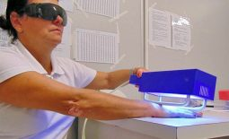 Điều trị vảy nến bằng quang trị liệu với tia UVB