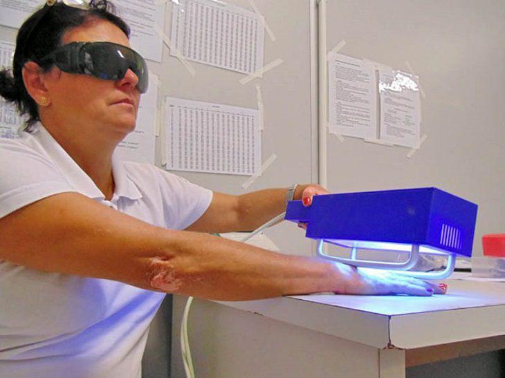 Quang hóa trị liệu trị vảy nến