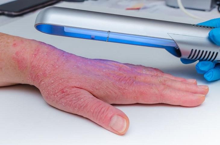 Phương pháp điều trị vảy nến bằng UVB