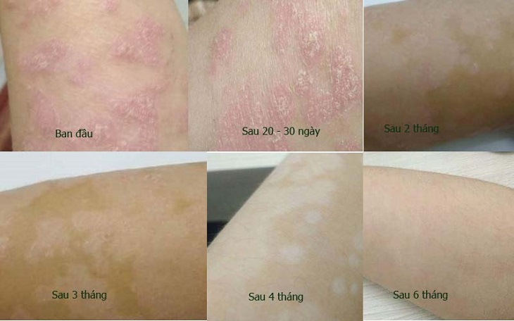 Sau 6 tháng, vùng da bong tróc của bệnh đã biến mất hoàn toàn
