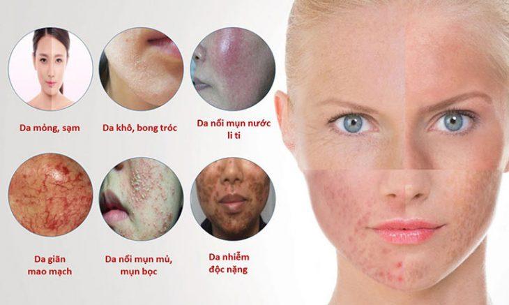 Hình ảnh da bị nhiễm độc Corticoid