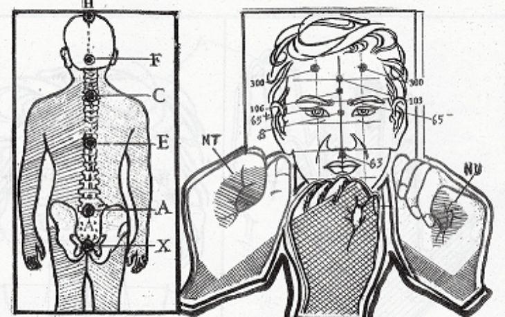 Hướng dẫn các vị trí cần lưu ý khi chữa rối loạn tiền đình bằng phương pháp diện chẩn