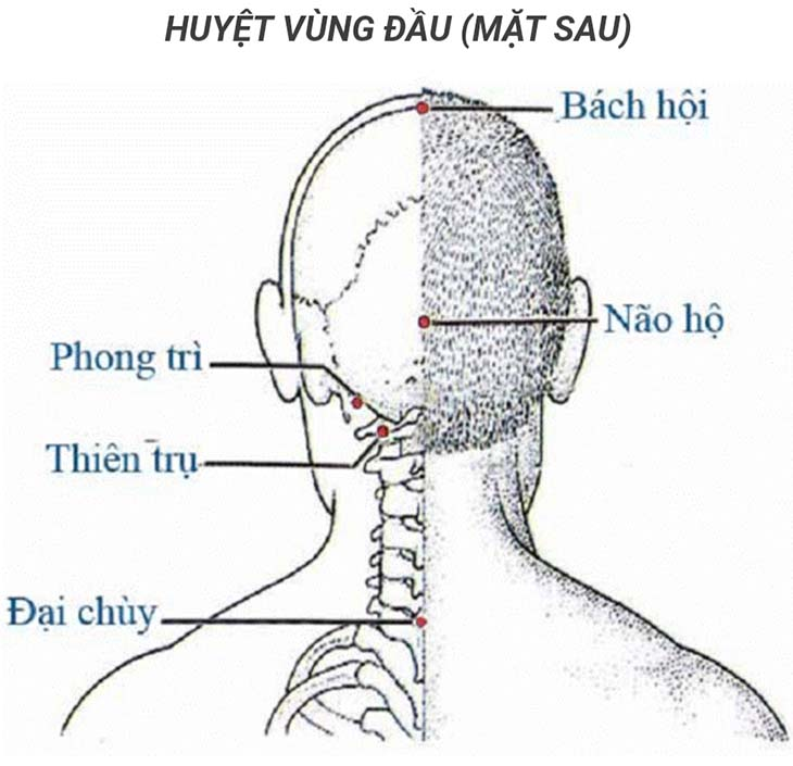 Điều trị viêm tai giữa bằng phương pháp Đông y bấm huyệt, châm cứu huyệt phong trì