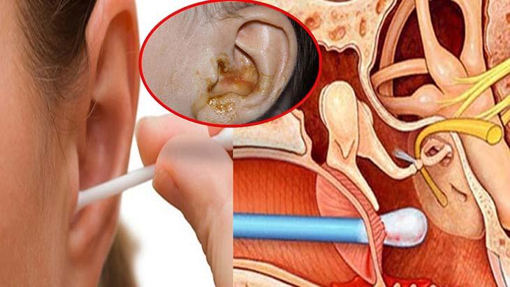 Lưu ý khi vệ sinh tai cần cẩn thận tránh làm thủng màng nhĩ