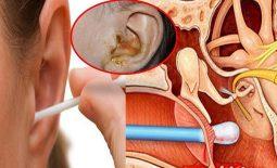 Điều trị viêm tai giữa hiệu quả