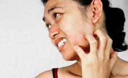 Ngứa da mặt nhưng không nổi mẩn - Dấu hiệu cảnh báo bệnh lý nguy hiểm, không được lơ là