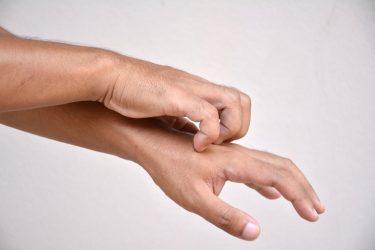 Ngứa tay chân nhưng không nổi mẩn là dấu hiệu của bệnh gì? Cách chẩn đoán nguyên nhân và điều trị