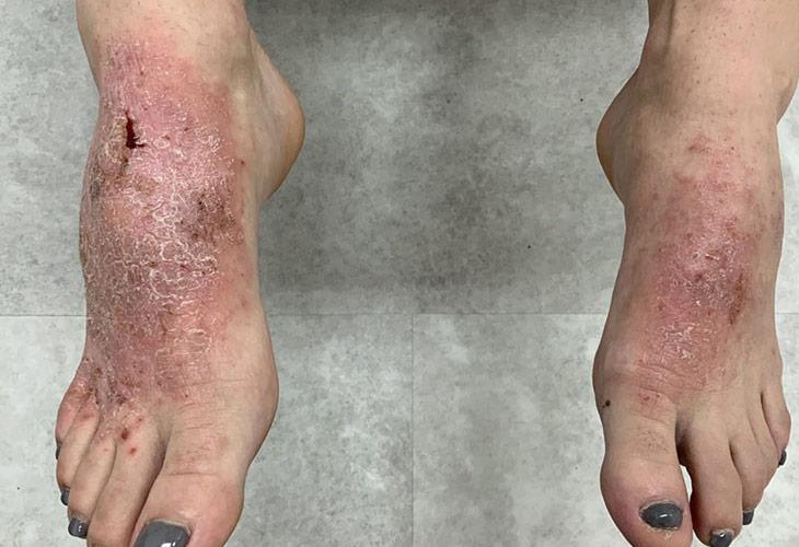Khi vùng chân có tiền sử bị nhiễm trùng thường có nguy cơ mắc bệnh viêm da cơ địa ở chân khá cao